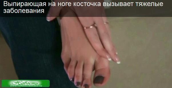Косточка на ноге, вызывает тяжелые заболевания