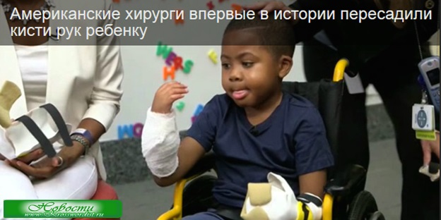 Хирурги США пересадили кисти рук ребенку
